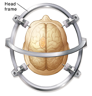 Top view of head inside stereotactic frame. Brain and tumor are ghosted in.